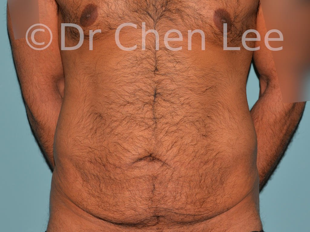 Abdominoplasty before after tummy tuck front photo #10