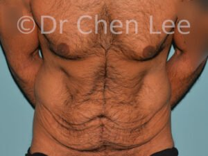 Abdominoplasty before after tummy tuck front flex photo #10