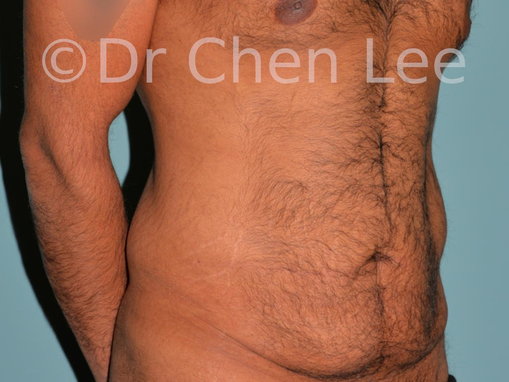 Abdominoplasty before after tummy tuck right oblique photo #10