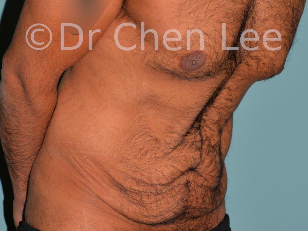 Abdominoplasty before after tummy tuck right oblique flex photo #10