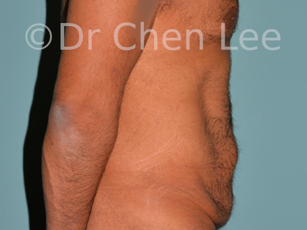 Abdominoplasty before after tummy tuck right side photo #10