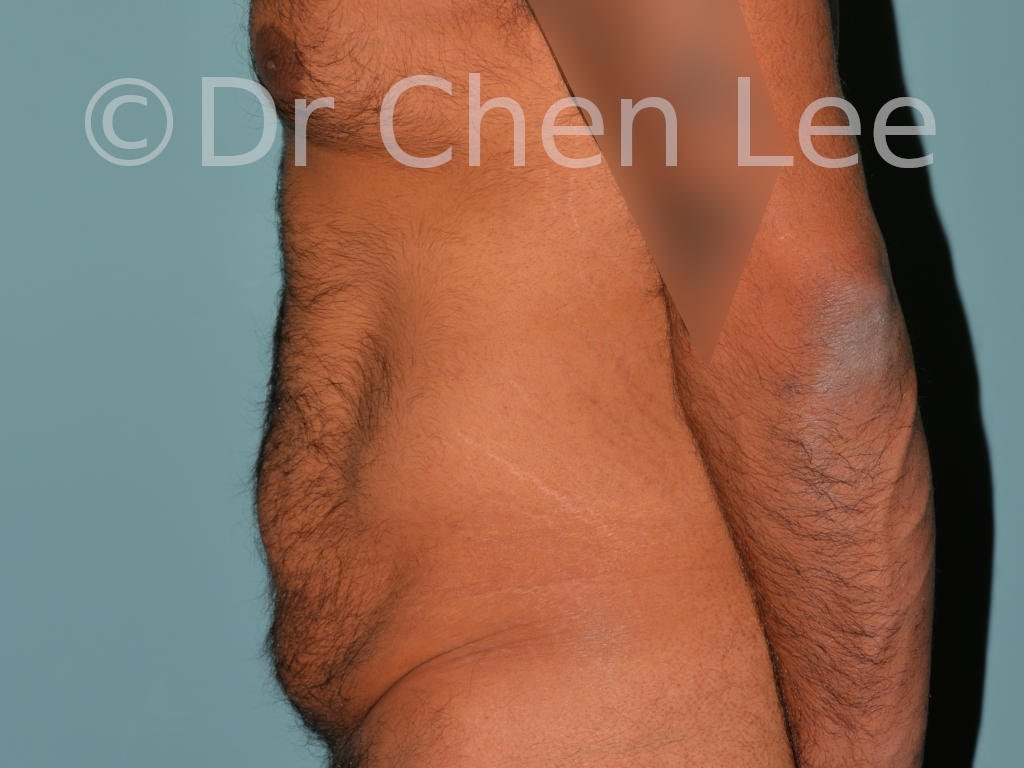 Abdominoplasty before after tummy tuck left side photo #10
