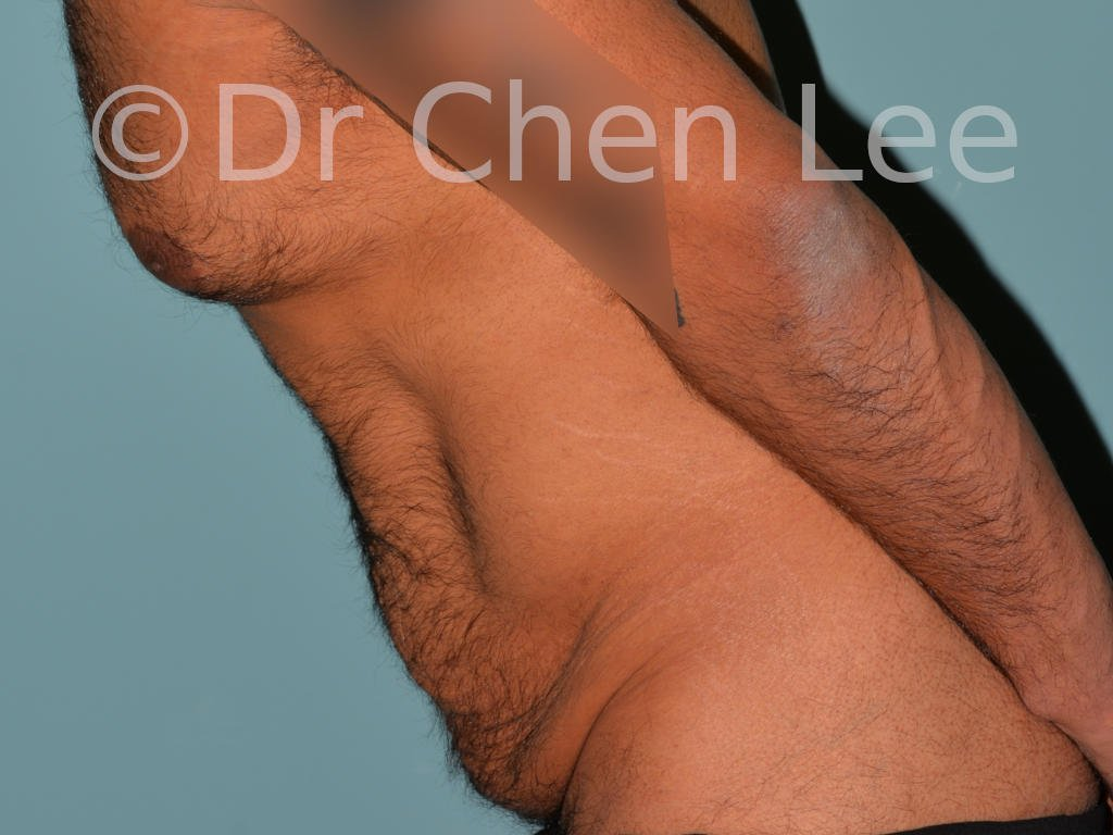 Abdominoplasty before after tummy tuck left side flex photo #10