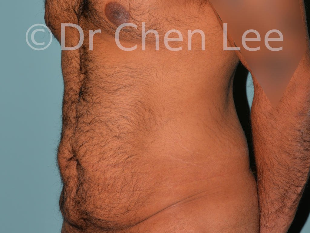 Abdominoplasty before after tummy tuck left oblique photo #10