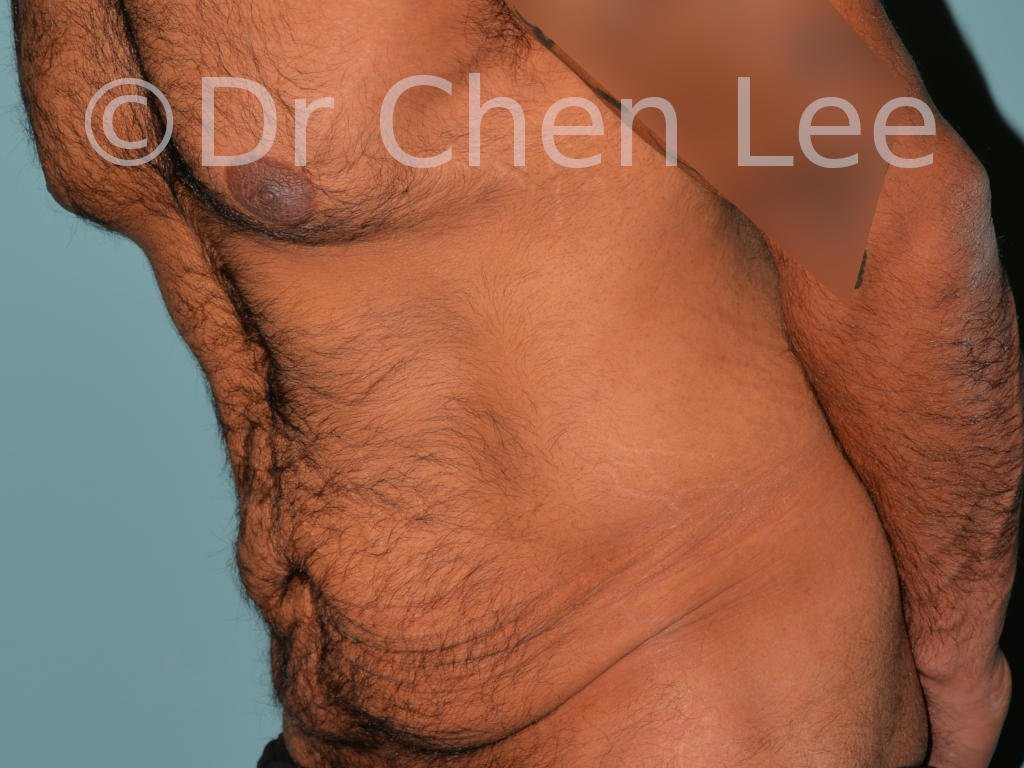 Abdominoplasty before after tummy tuck left oblique flex photo #10