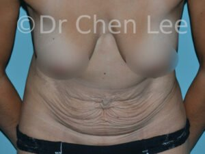 Abdominoplasty before after tummy tuck front flex photo #11