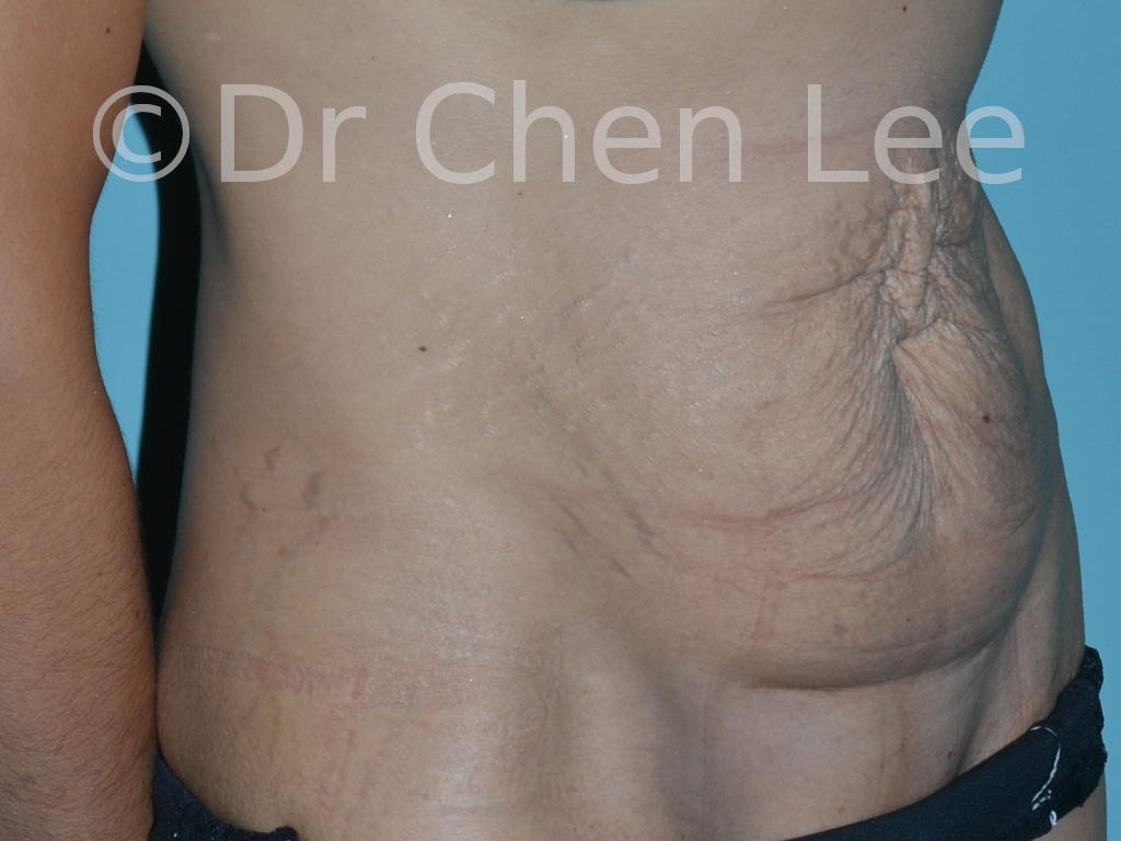 Abdominoplasty before after tummy tuck right oblique photo #11