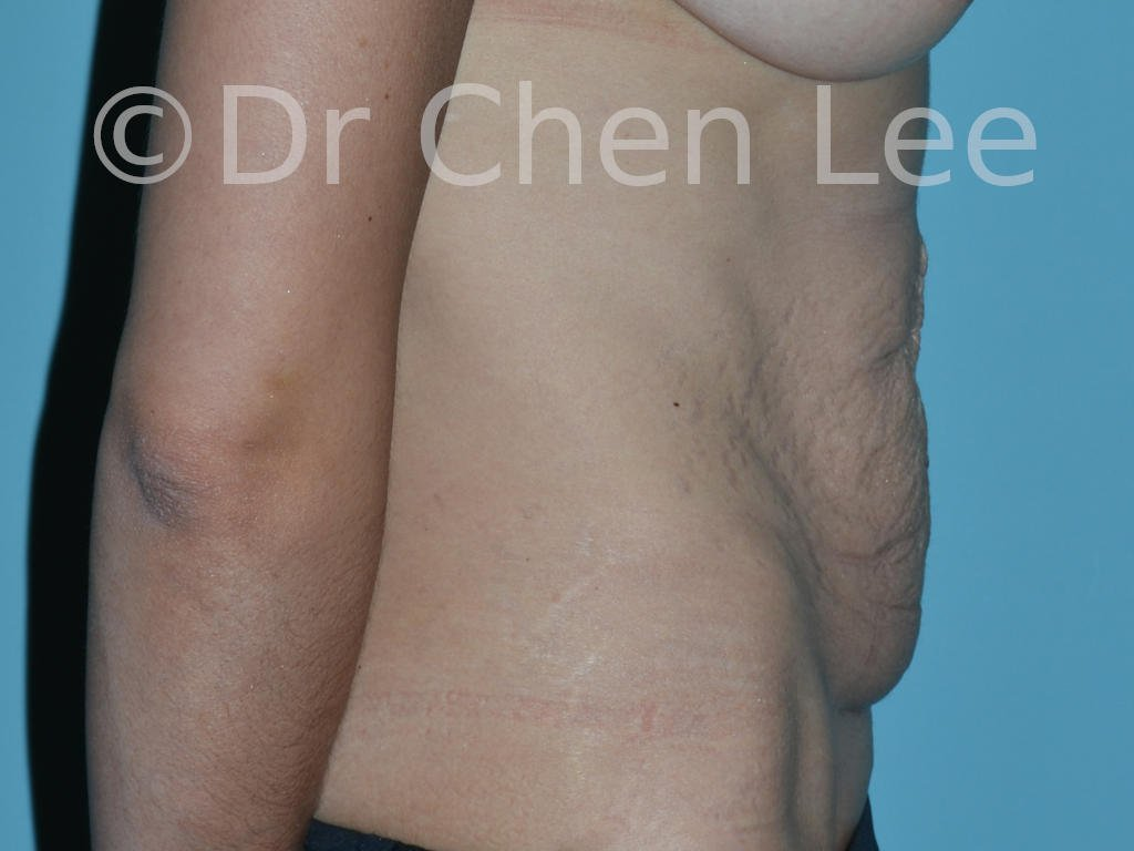 Abdominoplasty before after tummy tuck right side photo #11