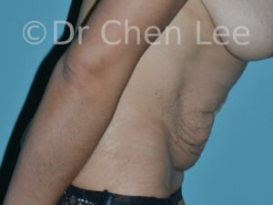 Abdominoplasty before after tummy tuck right side flex photo #11