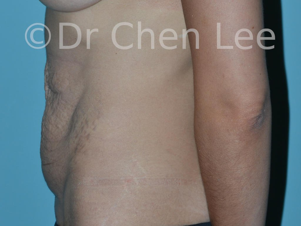 Abdominoplasty before after tummy tuck left side photo #11