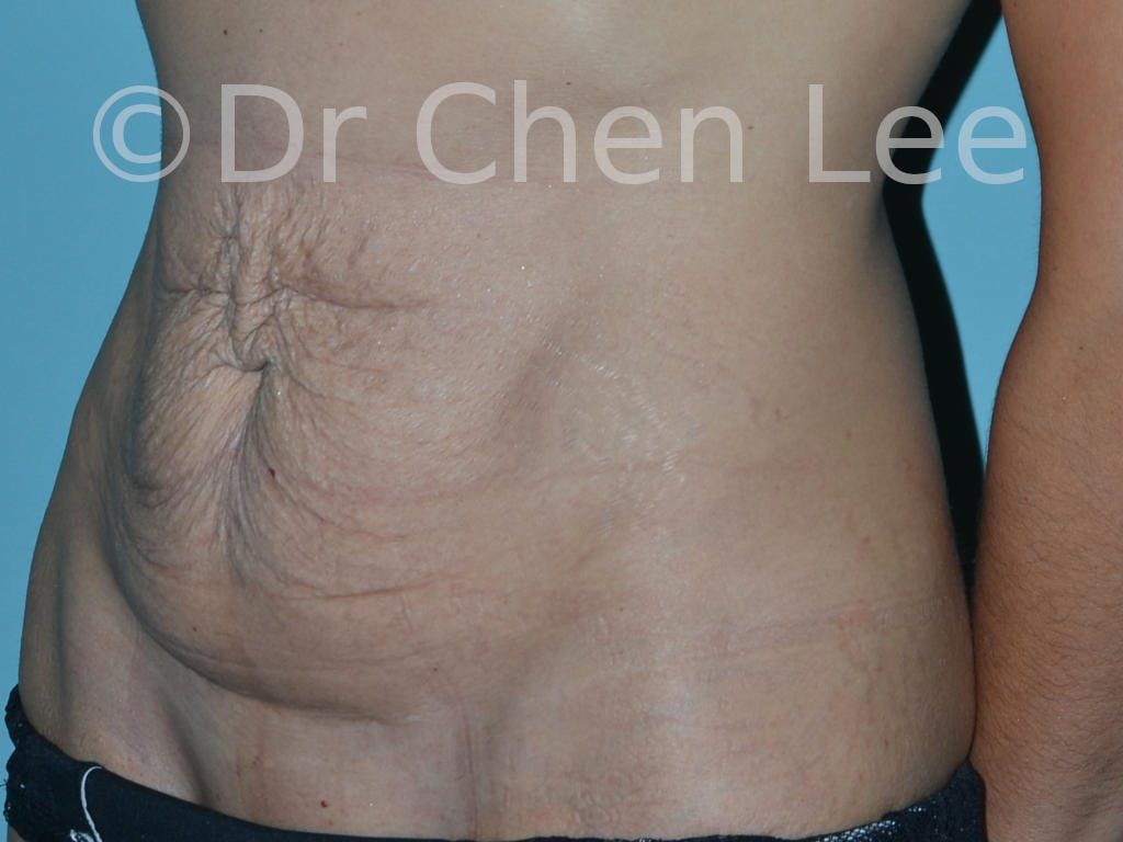 Abdominoplasty before after tummy tuck left oblique photo #11