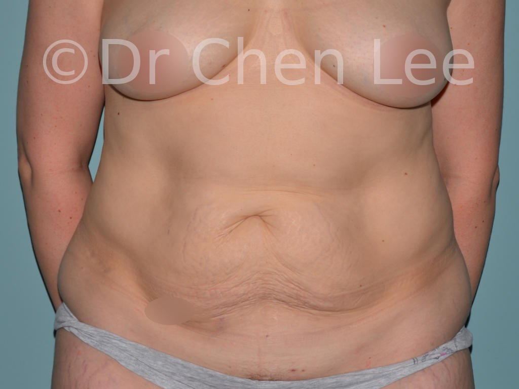 Abdominoplasty before after tummy tuck front photo #12