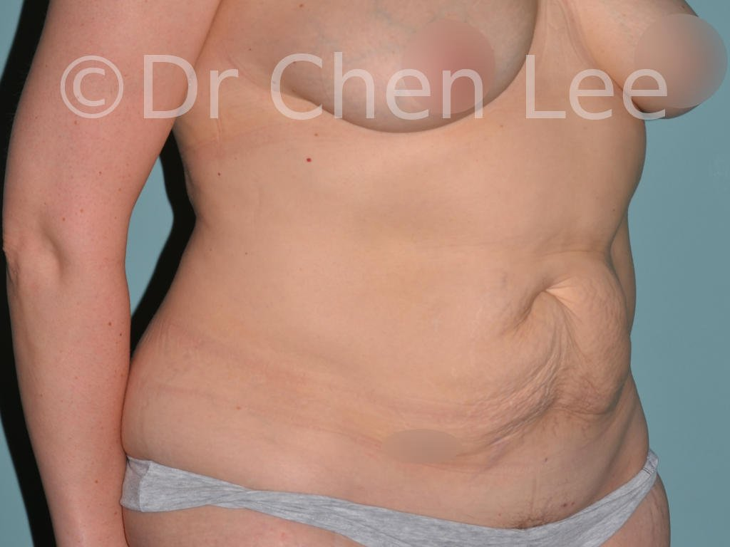 Abdominoplasty before after tummy tuck right oblique photo #012