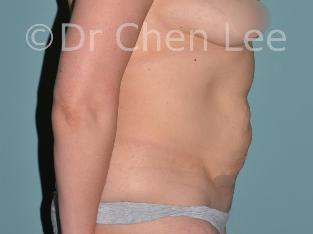 Abdominoplasty before after tummy tuck right side photo #12