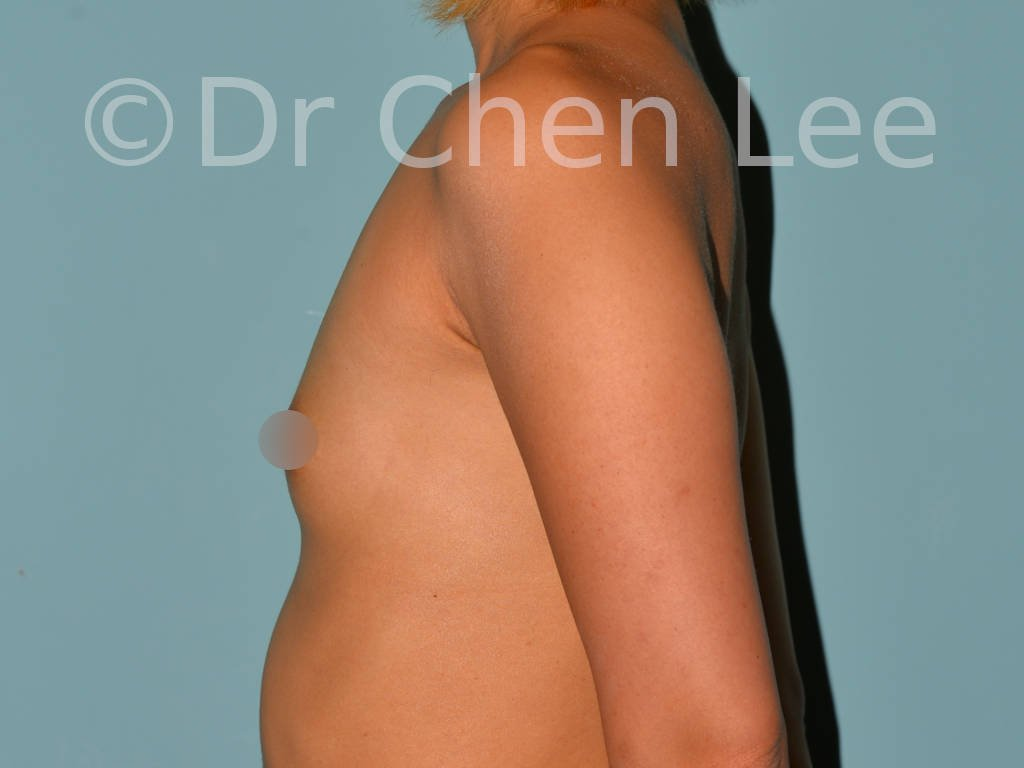 Asian breast augmentation/implant before after left side photo #03