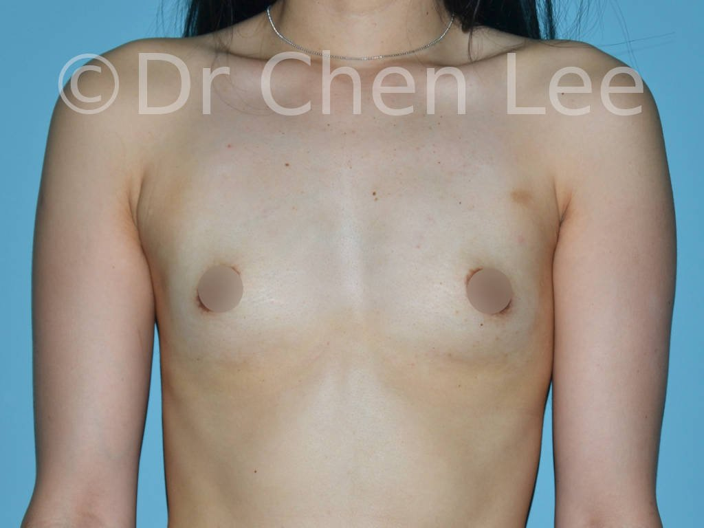 Asian breast augmentation/implant before after front photo #04