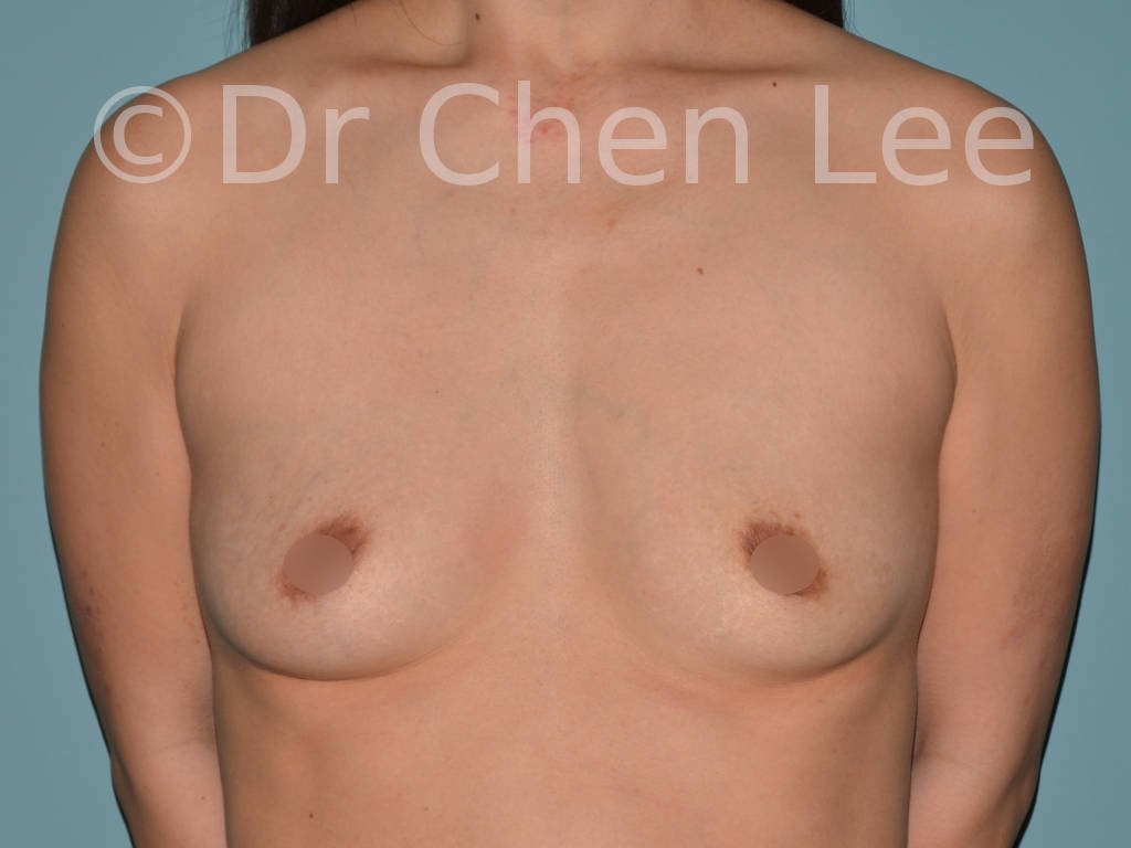 Asian breast augmentation/implant before after front photo #05