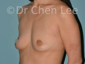 Asian breast augmentation/implant before after left oblique photo #05
