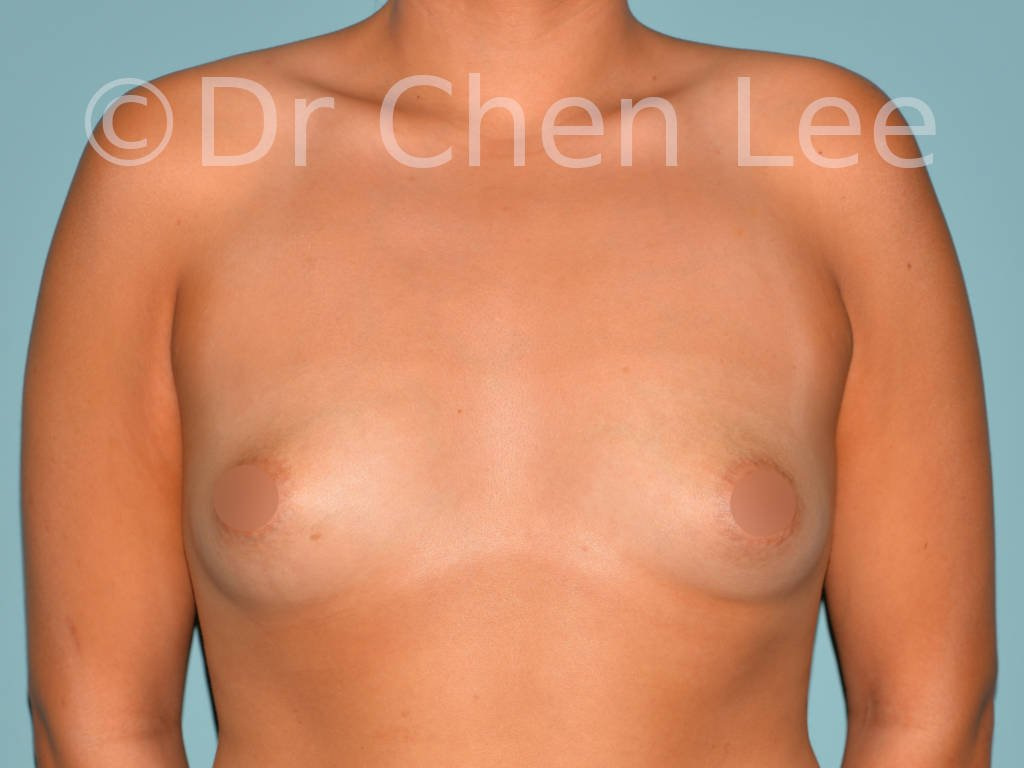 Asian breast augmentation/implant before after front photo #08