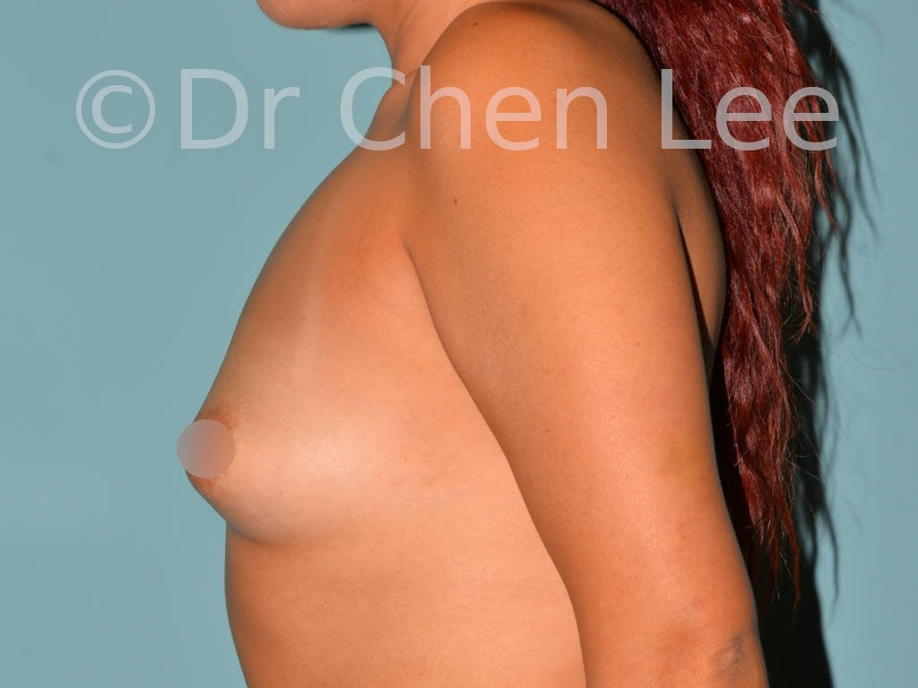 Asian breast augmentation/implant before after left side photo #08
