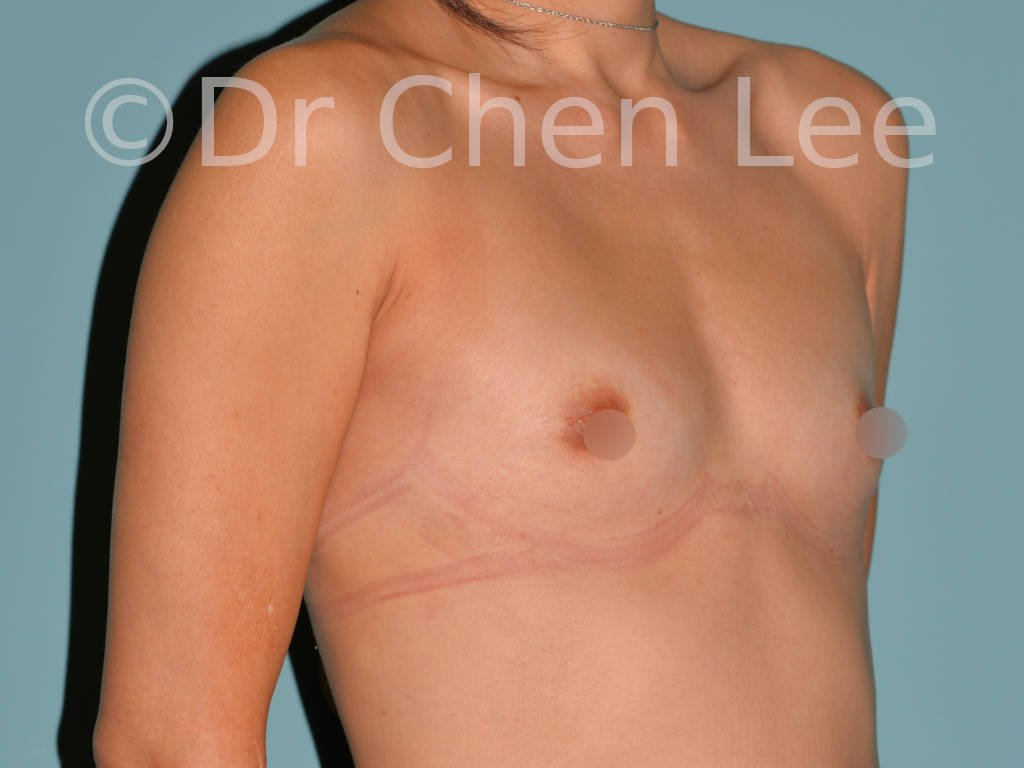 Asian breast augmentation/implant before after right oblique photo #10