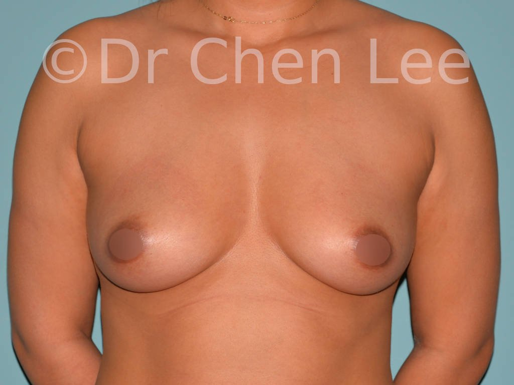 Asian breast augmentation/implant before after front photo #11