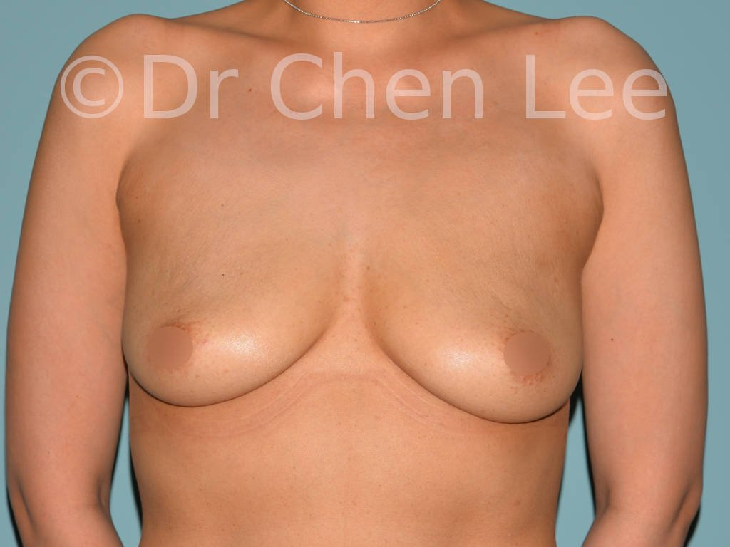 Asian breast augmentation/implant before after front photo #13