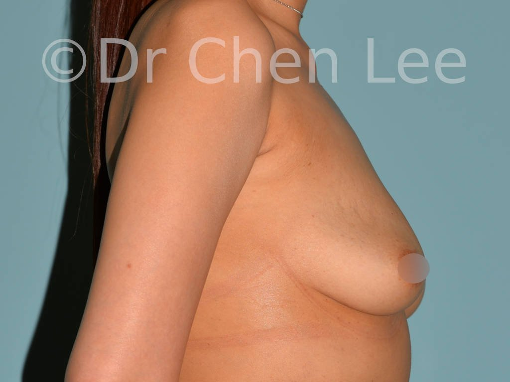 Asian breast augmentation/implant before after right side photo #13