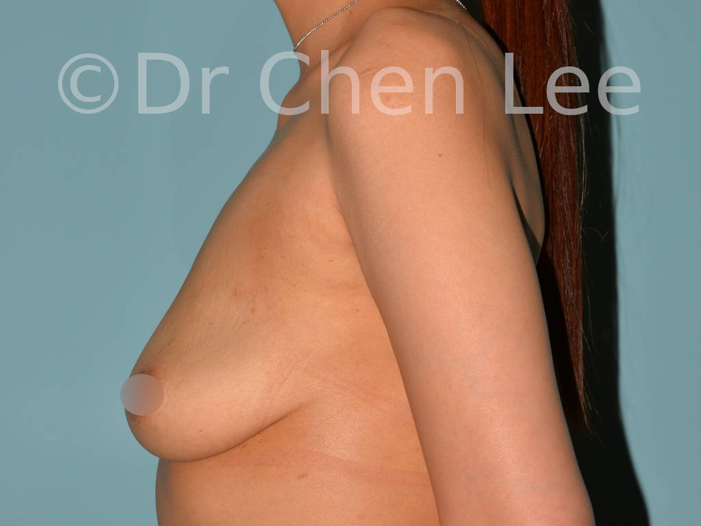 Asian breast augmentation/implant before after left side photo #13