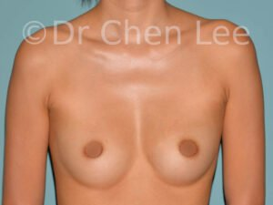 Asian breast augmentation/implant before after front photo #21