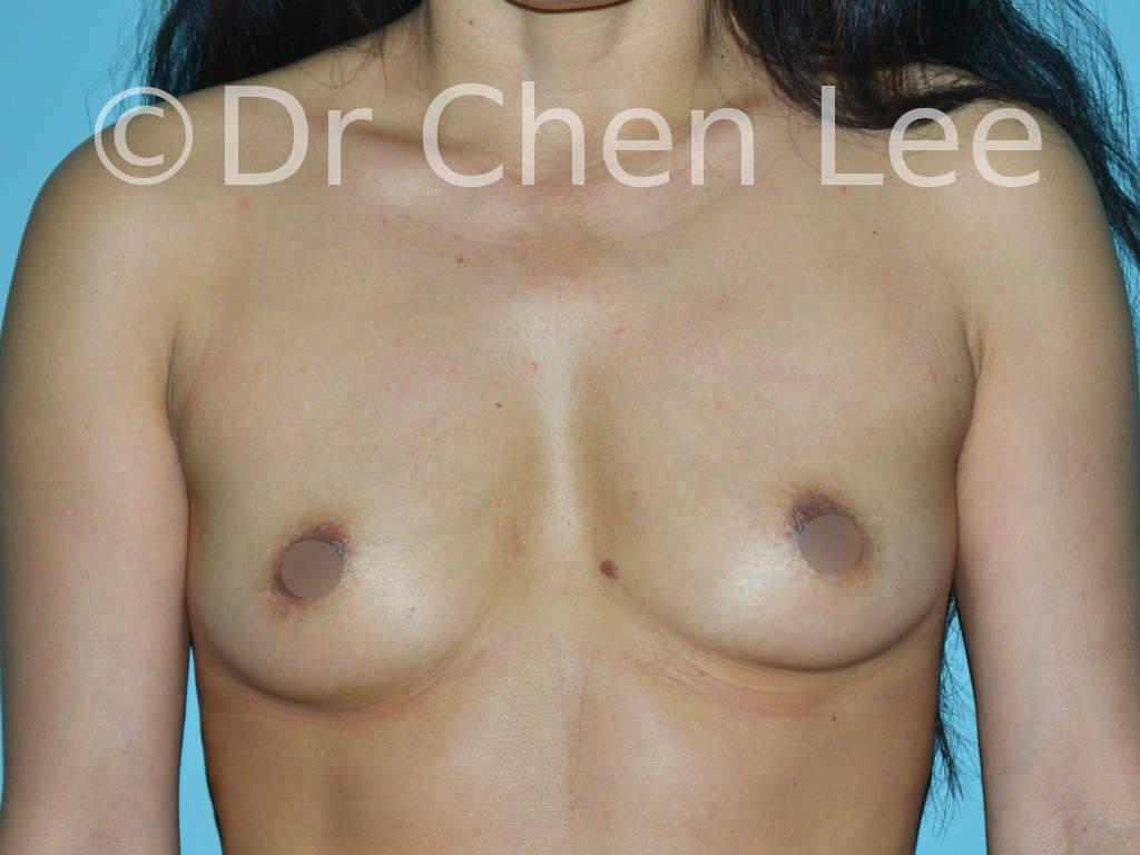 Asian breast augmentation/implant before after front photo #22