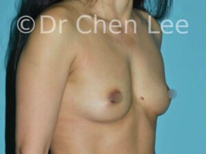Asian breast augmentation/implant before after right oblique photo #22