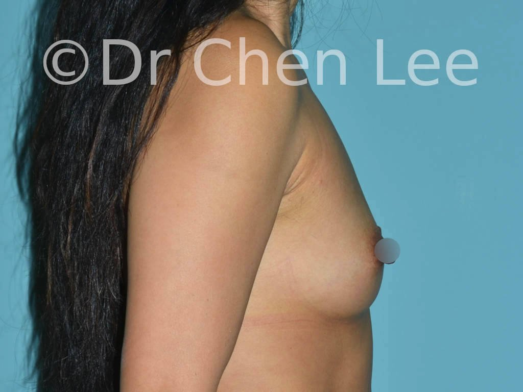 Asian breast augmentation/implant before after right side photo #22