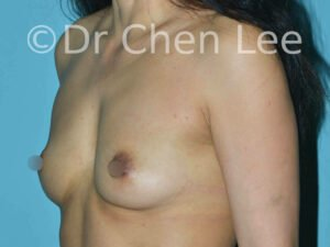 Asian breast augmentation/implant before after left oblique photo #22