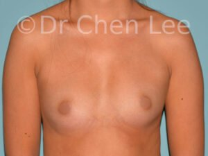 Asian breast augmentation/implant before after front photo #24