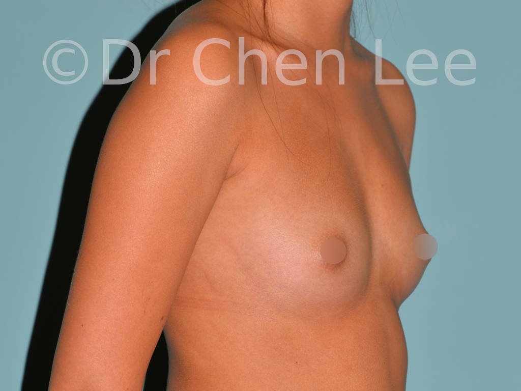 Asian breast augmentation/implant before after right oblique photo #24