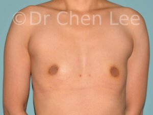 Asian breast augmentation/implant before after front photo #25
