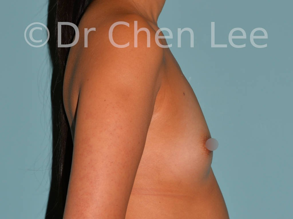 Asian breast augmentation/implant before after right side photo #27