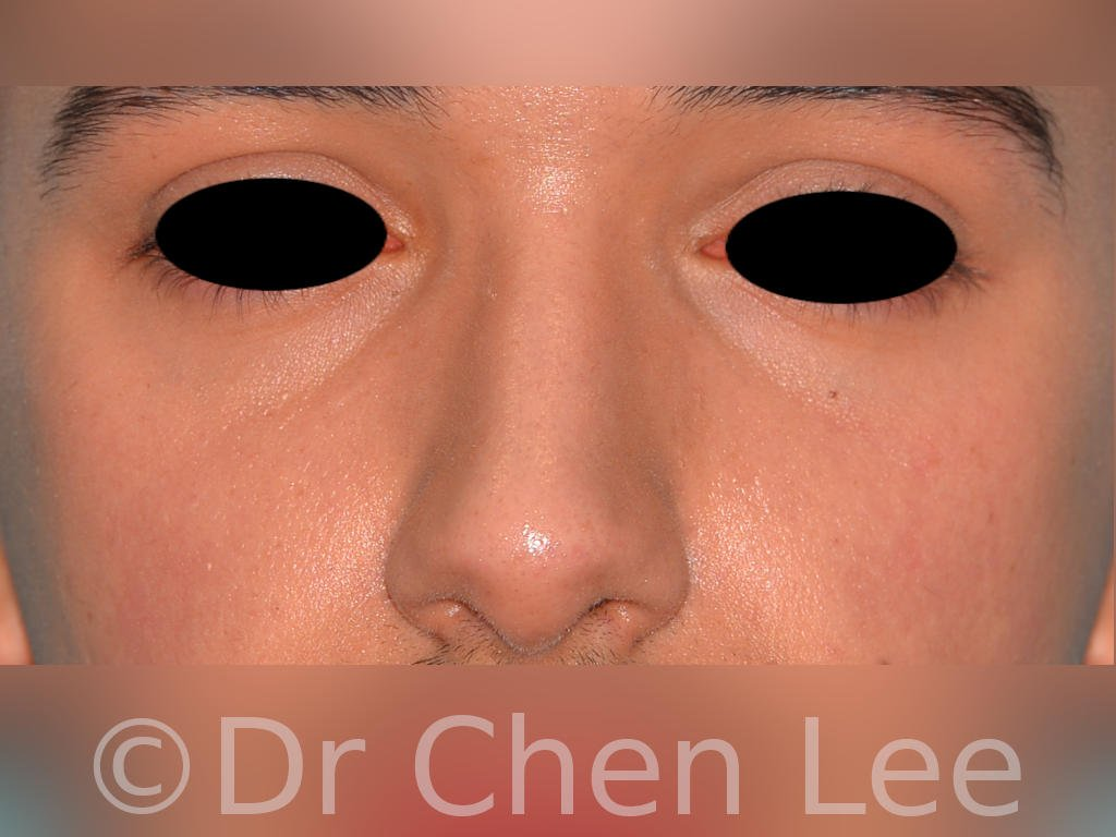 Nonsurgical rhinoplasty before after nose injection hyaluronic acid filler front photo #02