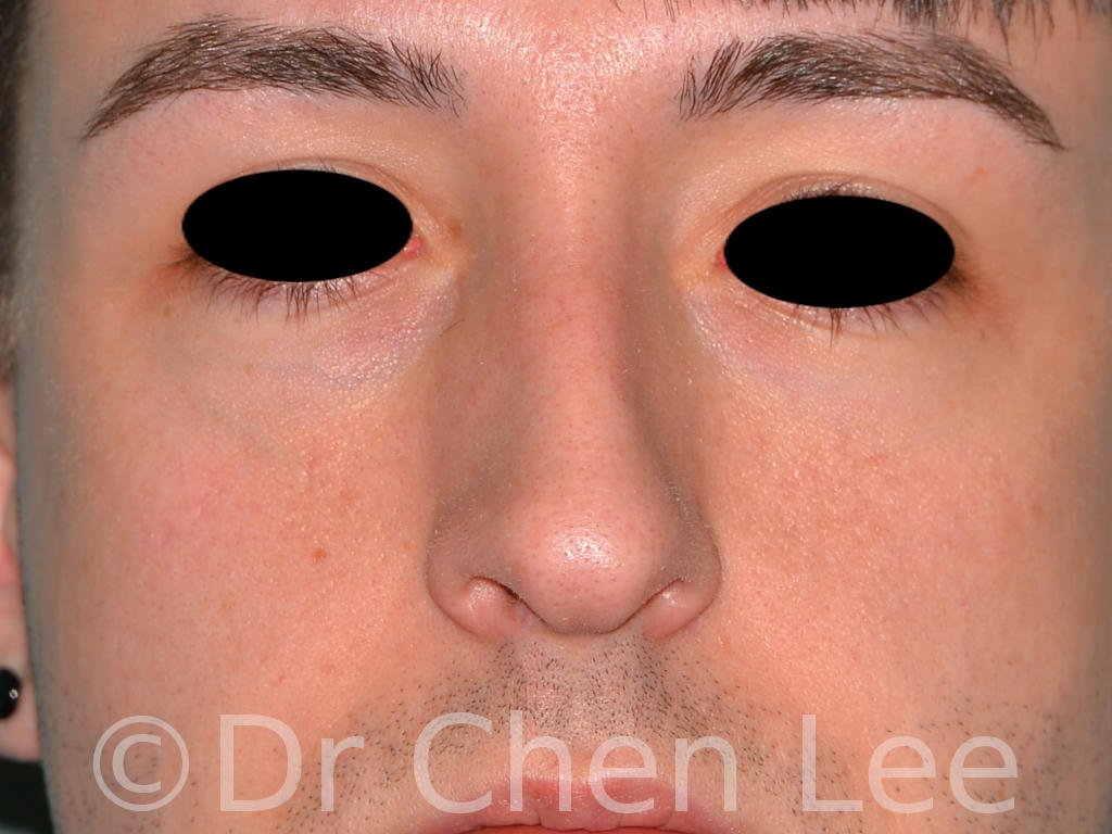 Rhinoplasty before after nose surgery front photo #02