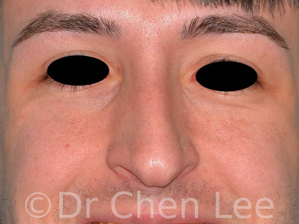 Rhinoplasty before after nose surgery front smile photo #02