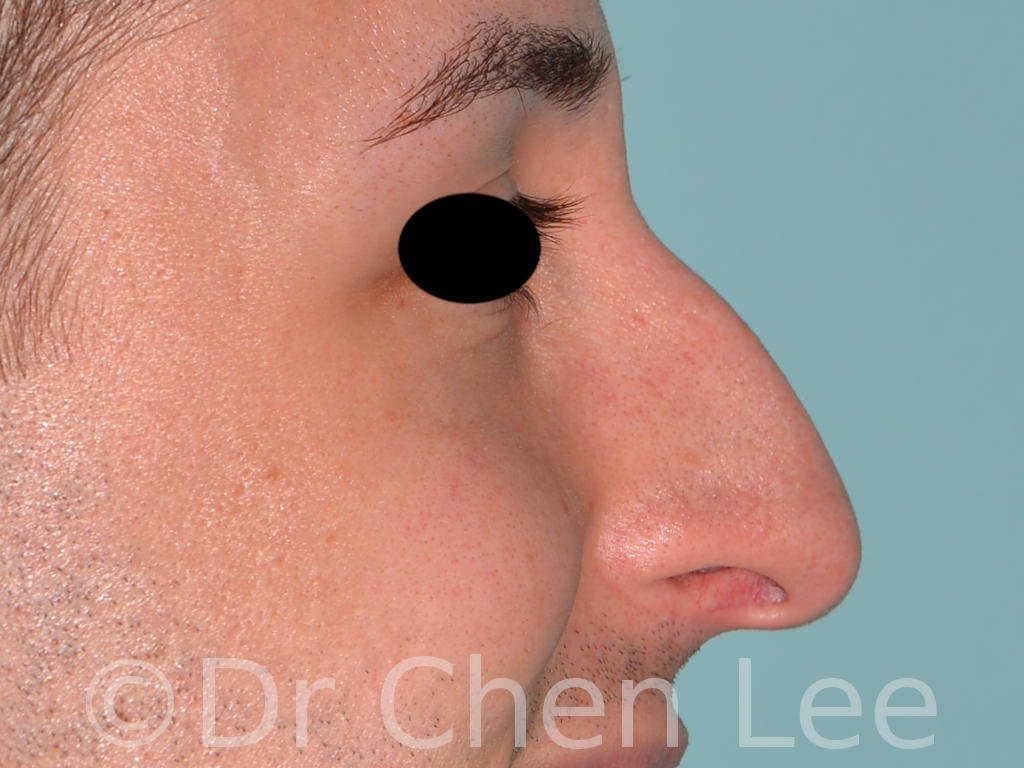 Rhinoplasty before after nose surgery right side smile photo #02