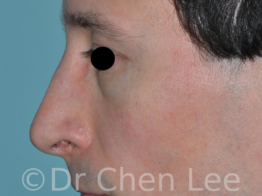 Rhinoplasty before after nose surgery left side photo #05