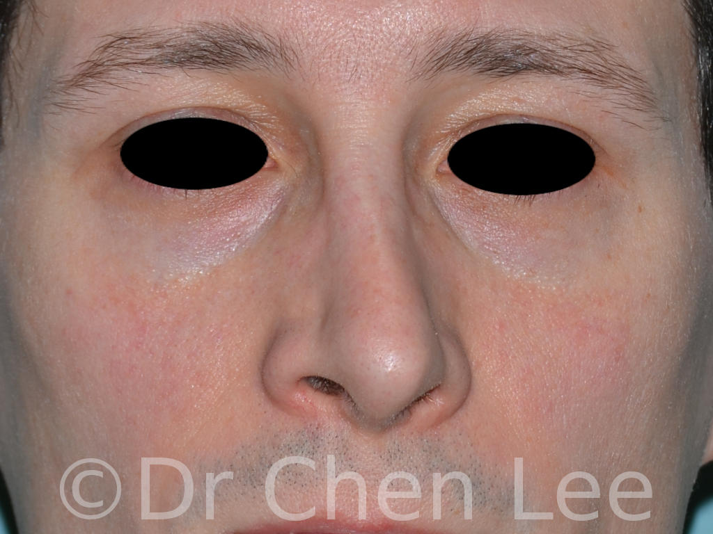 Rhinoplasty before after nose surgery front photo #05