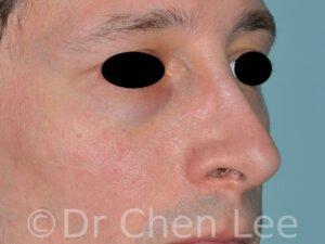 Rhinoplasty before after nose surgery right oblique photo #05