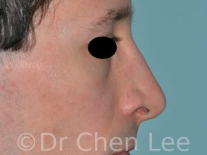 Rhinoplasty before after nose surgery right side photo #05