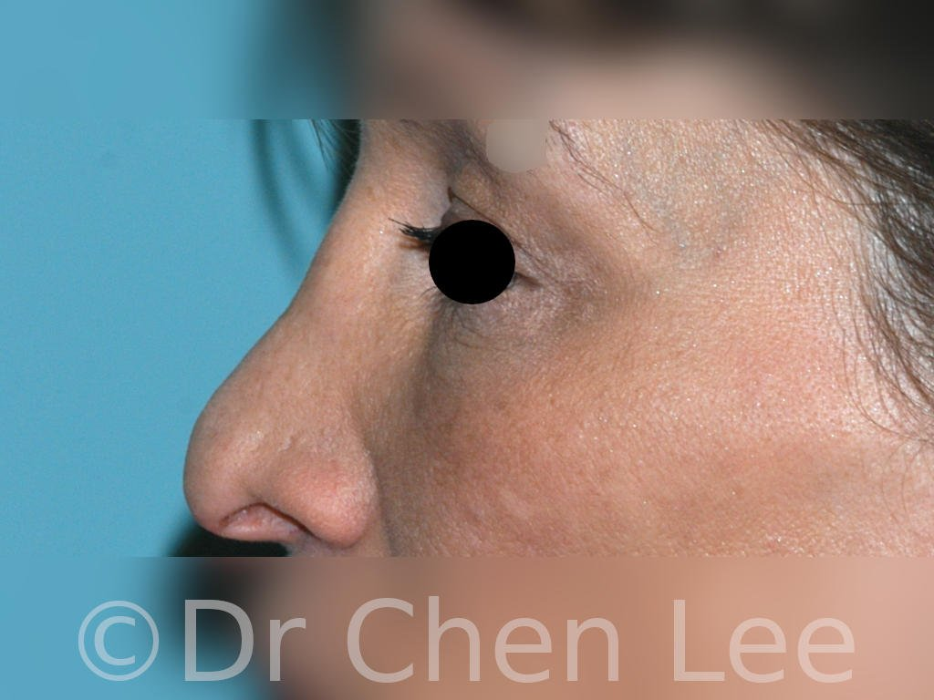Rhinoplasty before after nose surgery left side photo #06
