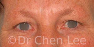 Blepharoplasty before after eyelid surgery front photo #13