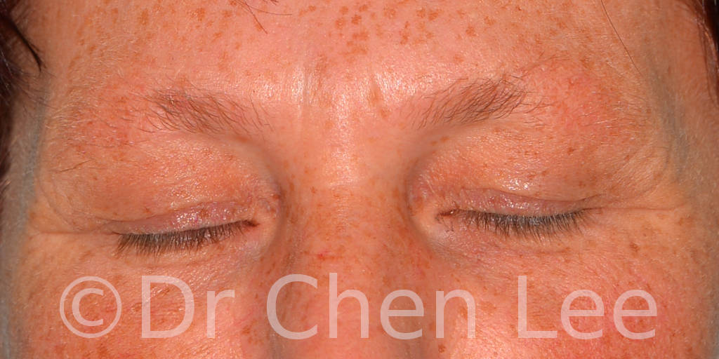 Blepharoplasty before after eyelid surgery front closed photo #13