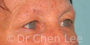 Blepharoplasty before after eyelid surgery right oblique photo #13